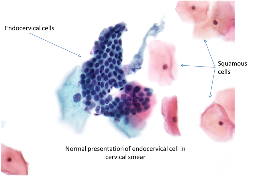 9b. Normal cytology and benign reactive changes   Eurocytology