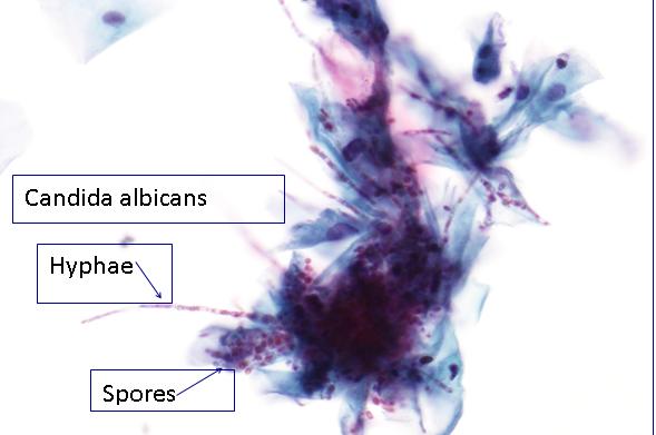 sinonazális papilloma onkocitikus típus