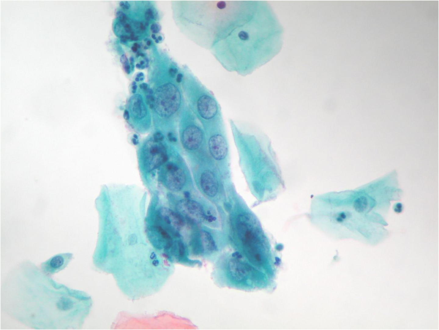 Reactive cytological changes   Eurocytology
