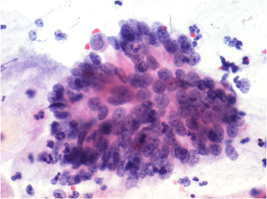 Abnormal glandular pap smear in vagina full!